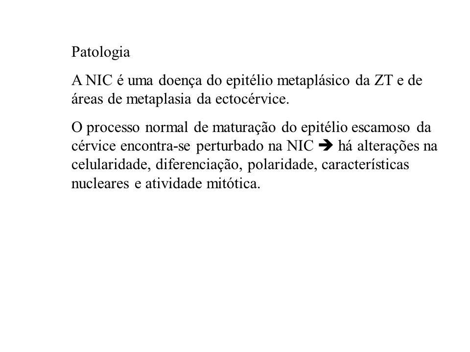 Patologia A NIC é uma doença do epitélio metaplásico da ZT e de áreas de metaplasia da ectocérvice. O processo normal de maturação do epitélio escamos