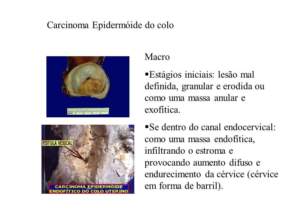 Carcinoma Epidermóide do colo Macro Estágios iniciais: lesão mal definida, granular e erodida ou como uma massa anular e exofítica. Se dentro do canal