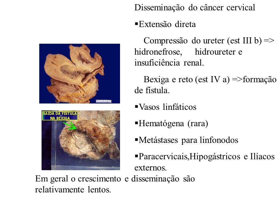 Disseminação do câncer cervical Extensão direta Compressão do ureter (est III b) => hidronefrose, hidroureter e insuficiência renal. Bexiga e reto (es