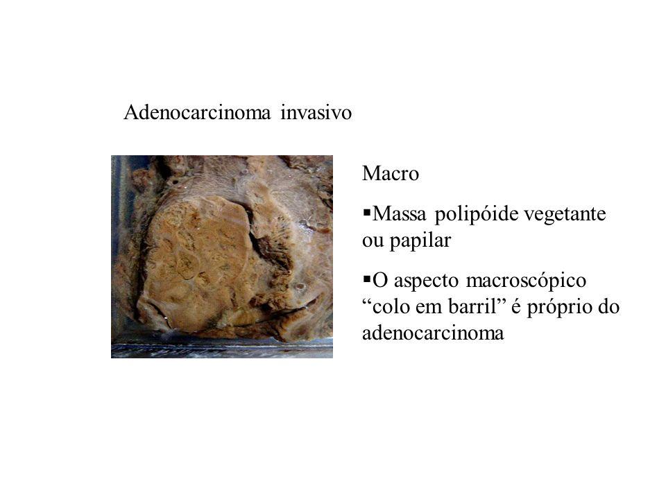 Macro Massa polipóide vegetante ou papilar O aspecto macroscópico colo em barril é próprio do adenocarcinoma Adenocarcinoma invasivo