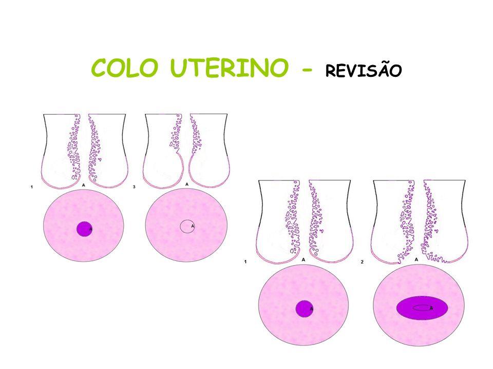COLO UTERINO - REVISÃO