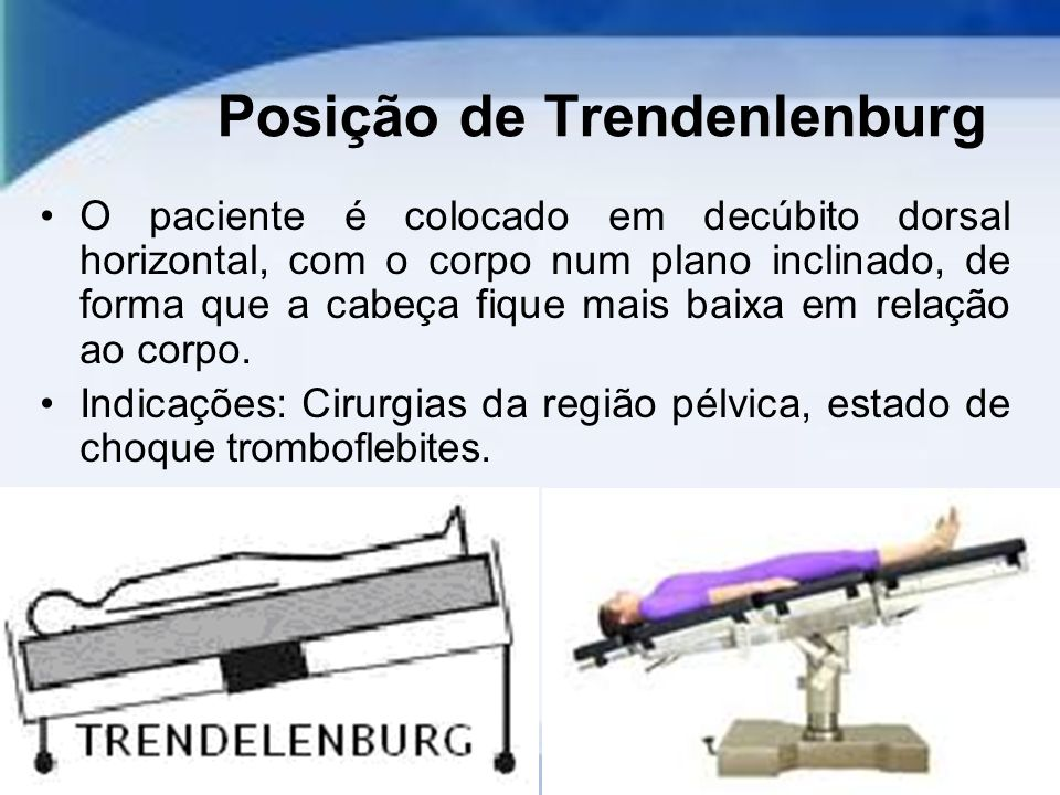 Posição de Trendenlenburg O paciente é colocado em decúbito dorsal horizontal, com o corpo num plano inclinado, de forma que a cabeça fique mais baixa em relação ao corpo.