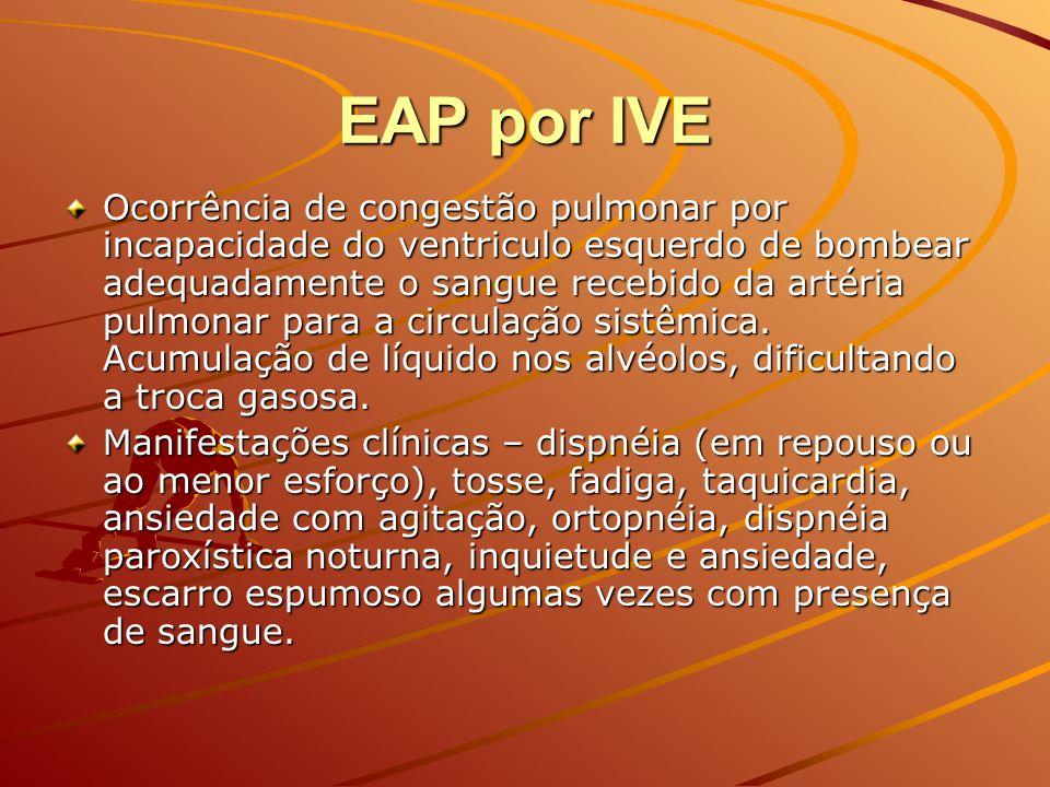EAP por IVE Ocorrência de congestão pulmonar por incapacidade do ventriculo esquerdo de bombear adequadamente o sangue recebido da artéria pulmonar pa