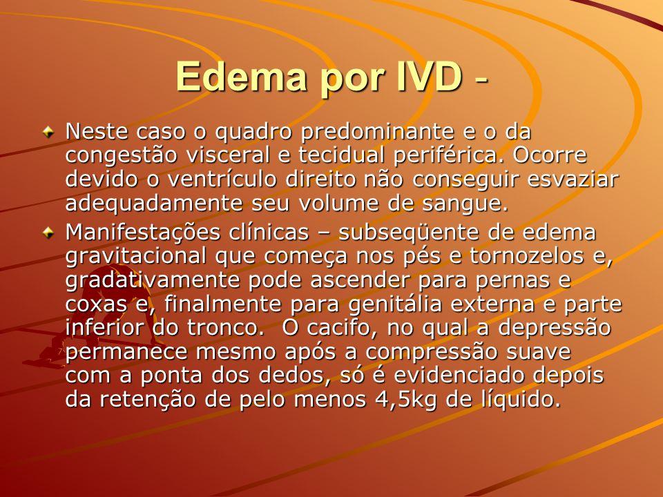 Edema por IVD - Neste caso o quadro predominante e o da congestão visceral e tecidual periférica. Ocorre devido o ventrículo direito não conseguir esv