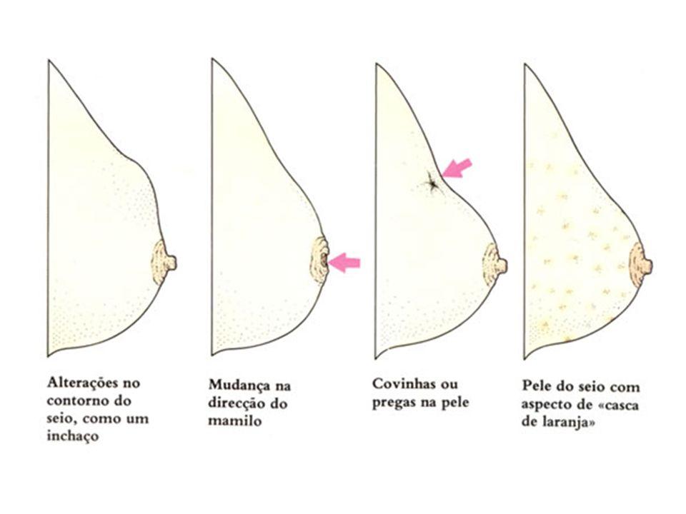 Mamas masculinas Normalidade: Não se observa tecido glandular A mama pode estar aumentada devido ao tecido gorduroso de obesidade Problemas de enfermagem: Nódulos Edema Ulcerações Aumento glandular (ginecomastia )