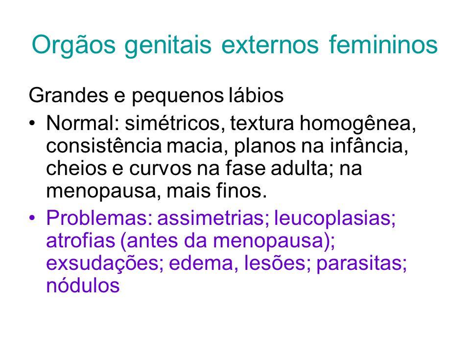 Orgãos genitais externos femininos Grandes e pequenos lábios Normal: simétricos, textura homogênea, consistência macia, planos na infância, cheios e c