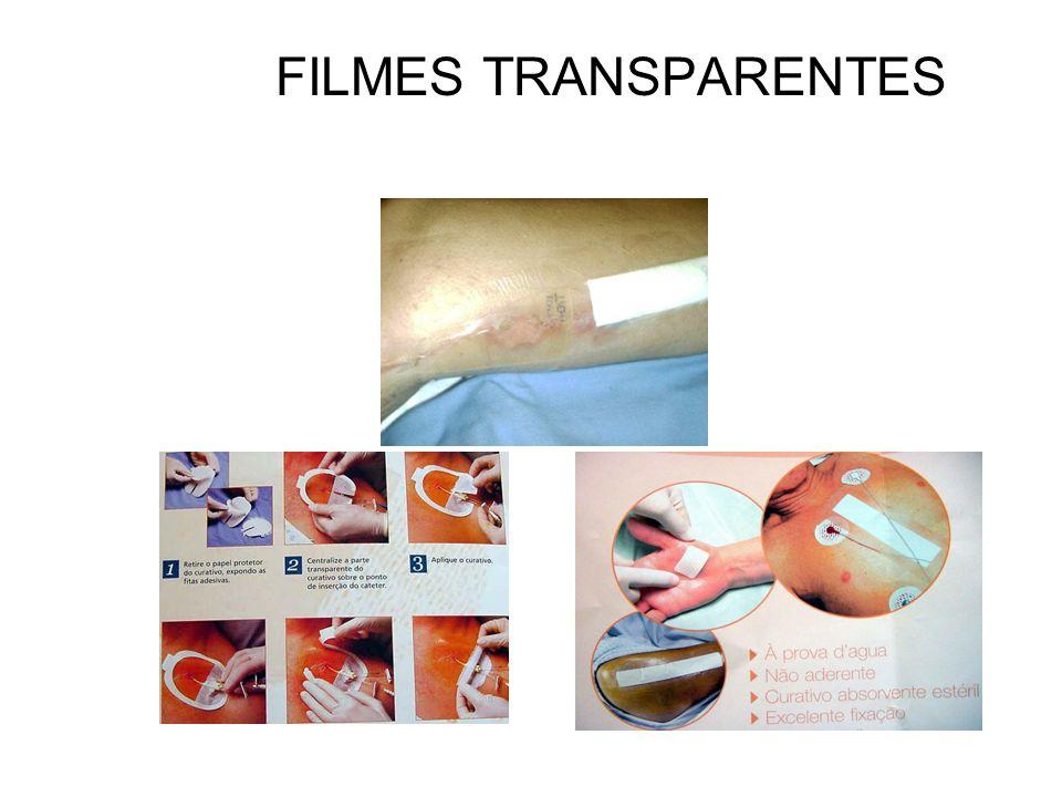 FILMES TRANSPARENTES
