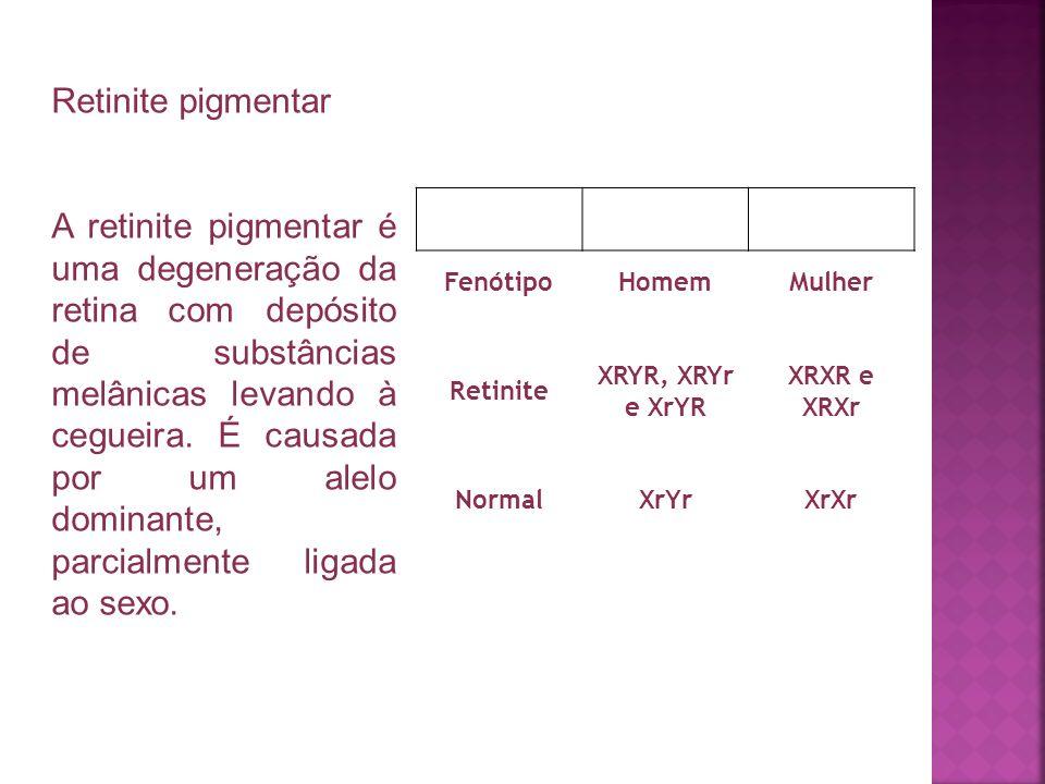 Retinite pigmentar A retinite pigmentar é uma degeneração da retina com depósito de substâncias melânicas levando à cegueira. É causada por um alelo d