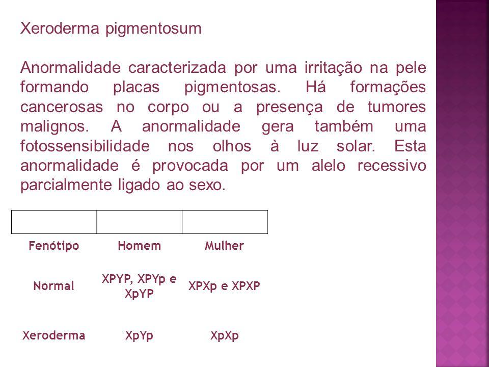 FenótipoHomemMulher Normal XPYP, XPYp e XpYP XPXp e XPXP XerodermaXpYpXpXp Xeroderma pigmentosum Anormalidade caracterizada por uma irritação na pele