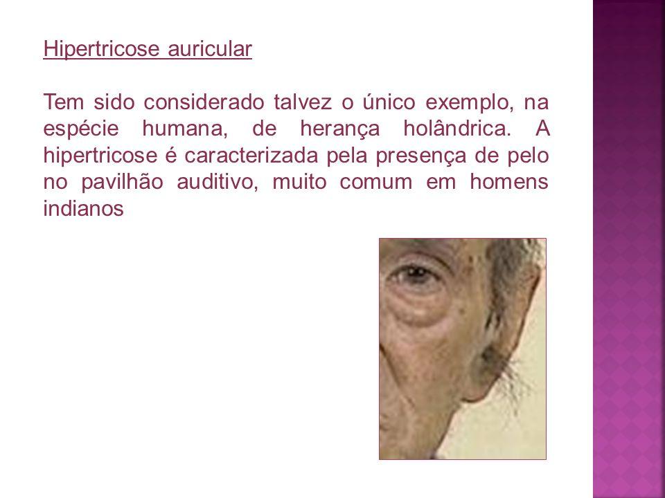 Hipertricose auricular Tem sido considerado talvez o único exemplo, na espécie humana, de herança holândrica. A hipertricose é caracterizada pela pres