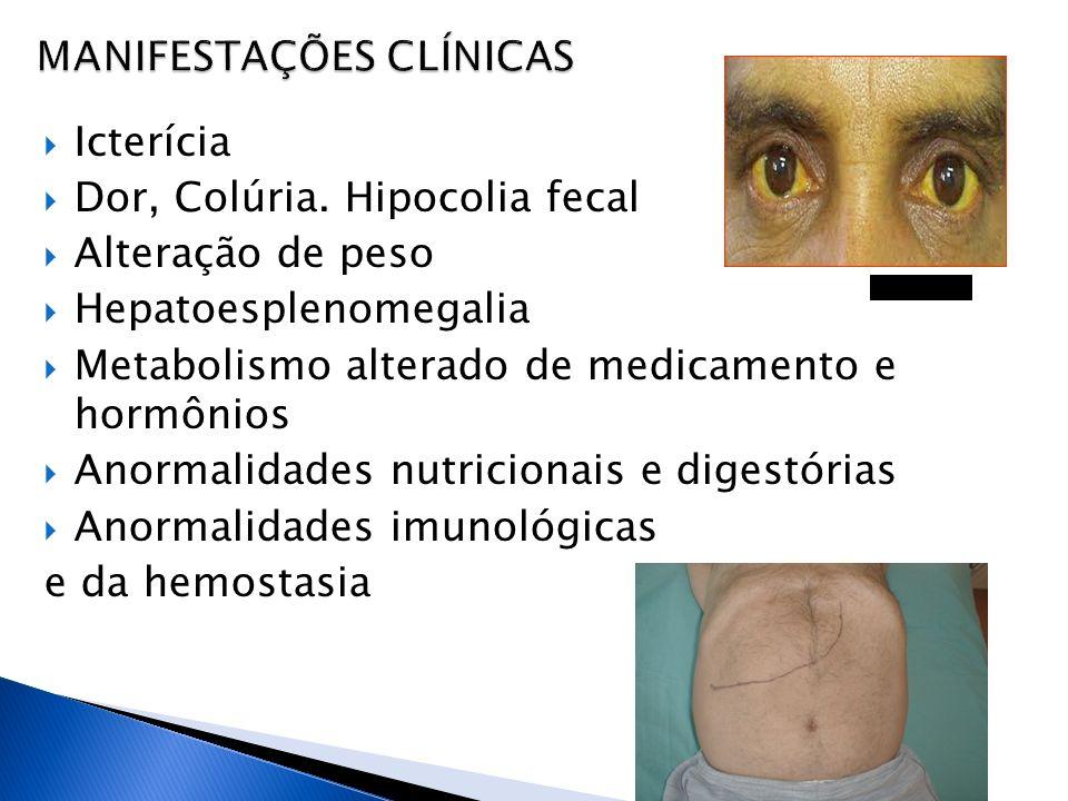 Icterícia Dor, Colúria. Hipocolia fecal Alteração de peso Hepatoesplenomegalia Metabolismo alterado de medicamento e hormônios Anormalidades nutricion
