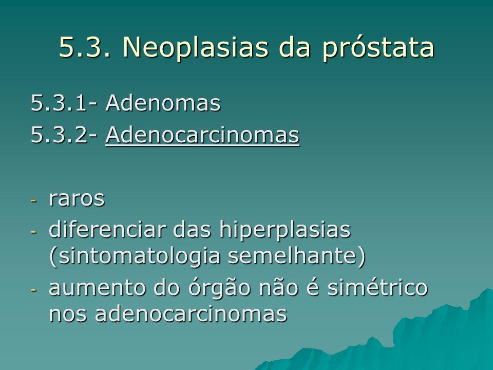 5.3. Neoplasias da próstata 5.3.1- Adenomas 5.3.2- Adenocarcinomas - raros - diferenciar das hiperplasias (sintomatologia semelhante) - aumento do órg