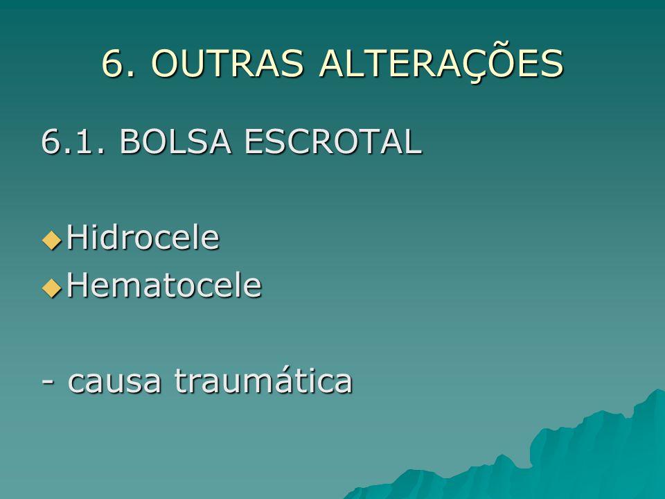 6. OUTRAS ALTERAÇÕES 6.1. BOLSA ESCROTAL Hidrocele Hidrocele Hematocele Hematocele - causa traumática