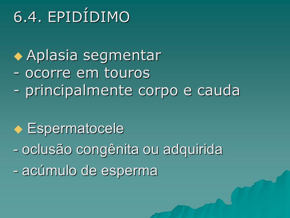 6.4. EPIDÍDIMO A plasia segmentar - ocorre em touros - principalmente corpo e cauda Espermatocele - oclusão congênita ou adquirida - acúmulo de esperm