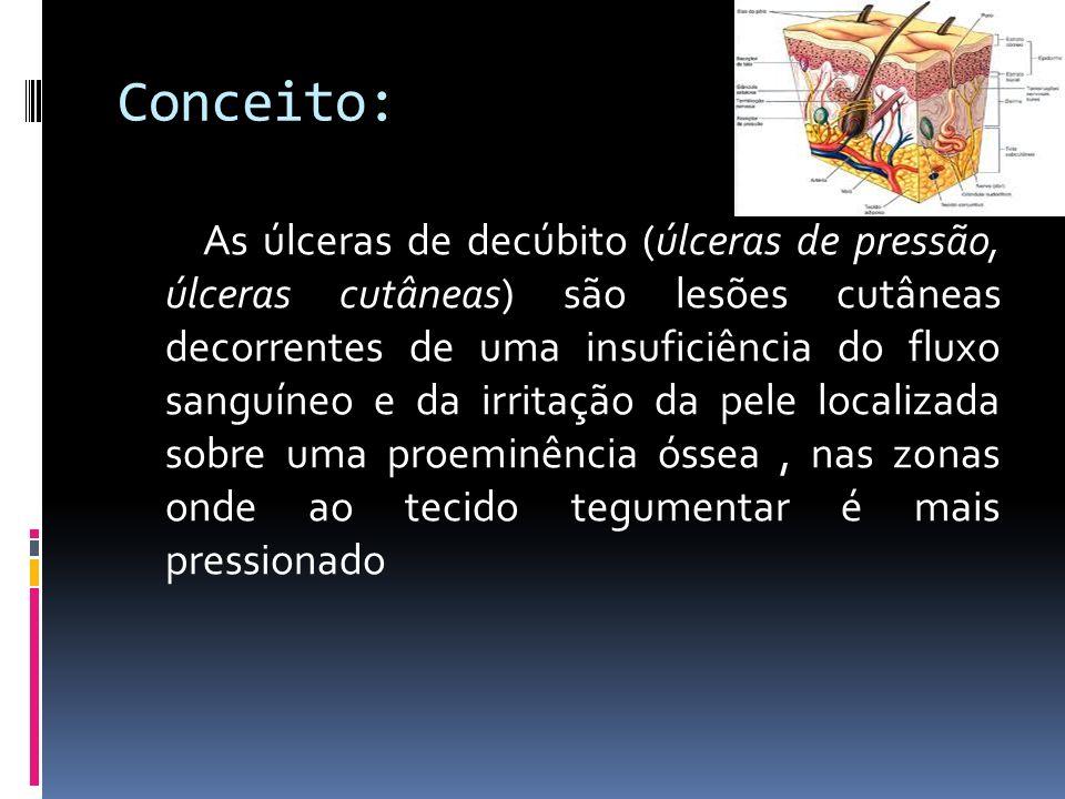 Conceito: As úlceras de decúbito (úlceras de pressão, úlceras cutâneas) são lesões cutâneas decorrentes de uma insuficiência do fluxo sanguíneo e da i