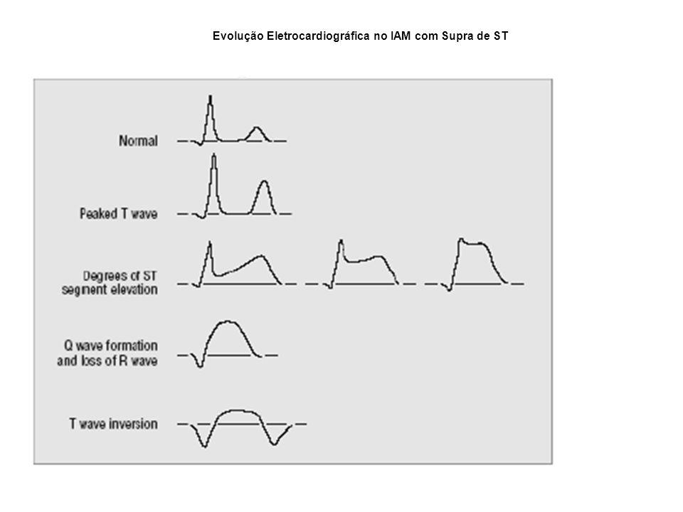 Evolução Eletrocardiográfica no IAM com Supra de ST