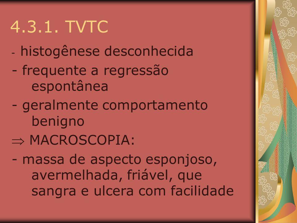 4.3.1. TVTC - histogênese desconhecida - frequente a regressão espontânea - geralmente comportamento benigno MACROSCOPIA: - massa de aspecto esponjoso