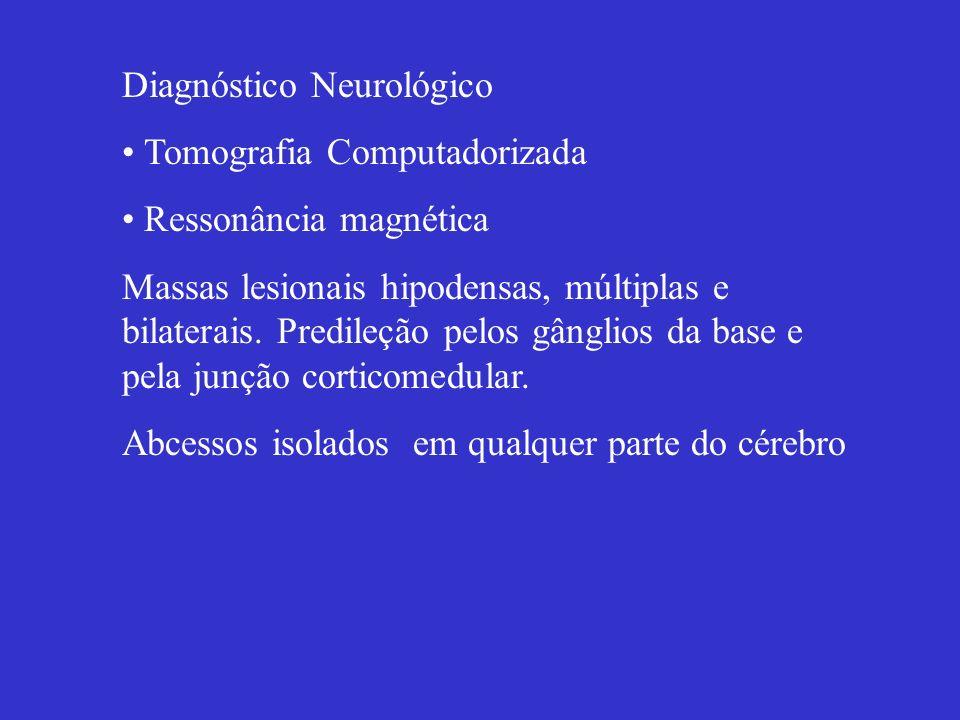 Diagnóstico Neurológico Tomografia Computadorizada Ressonância magnética Massas lesionais hipodensas, múltiplas e bilaterais. Predileção pelos gânglio