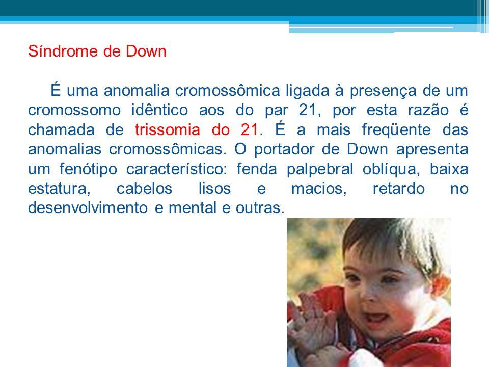 Síndrome de Down É uma anomalia cromossômica ligada à presença de um cromossomo idêntico aos do par 21, por esta razão é chamada de trissomia do 21. É