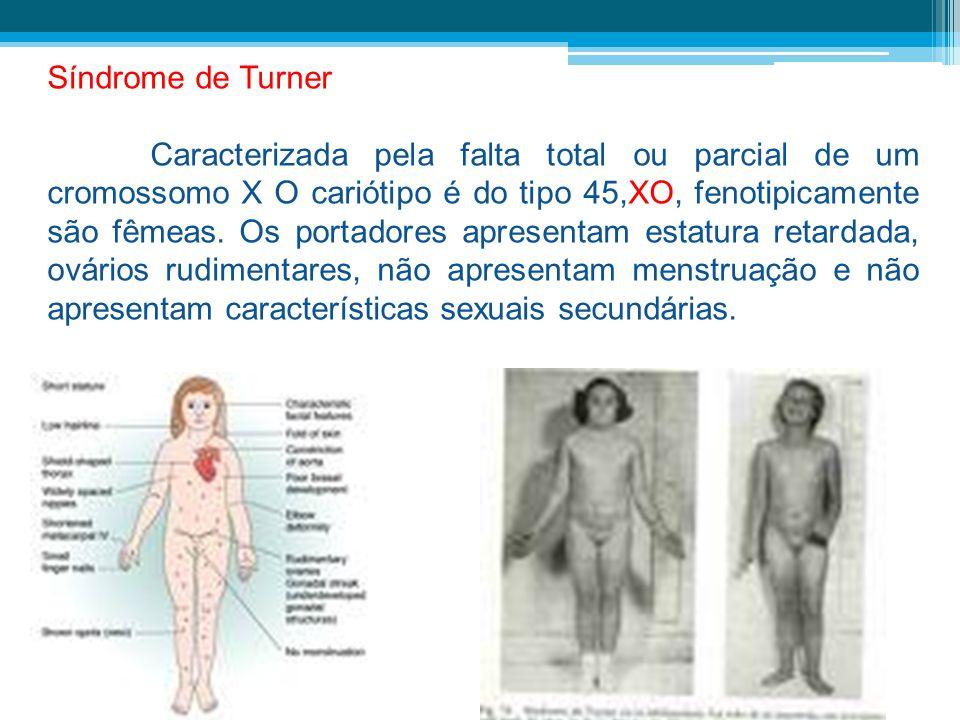 Síndrome de Turner Caracterizada pela falta total ou parcial de um cromossomo X O cariótipo é do tipo 45,XO, fenotipicamente são fêmeas. Os portadores
