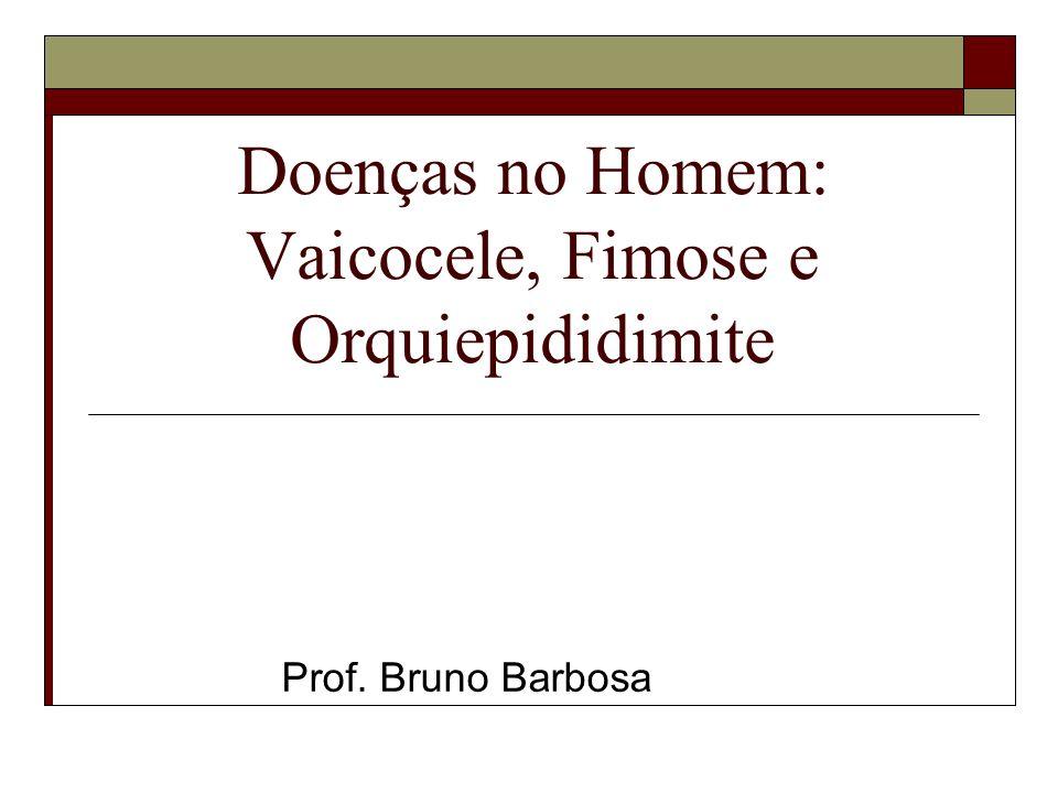 Doenças no Homem: Vaicocele, Fimose e Orquiepididimite Prof. Bruno Barbosa