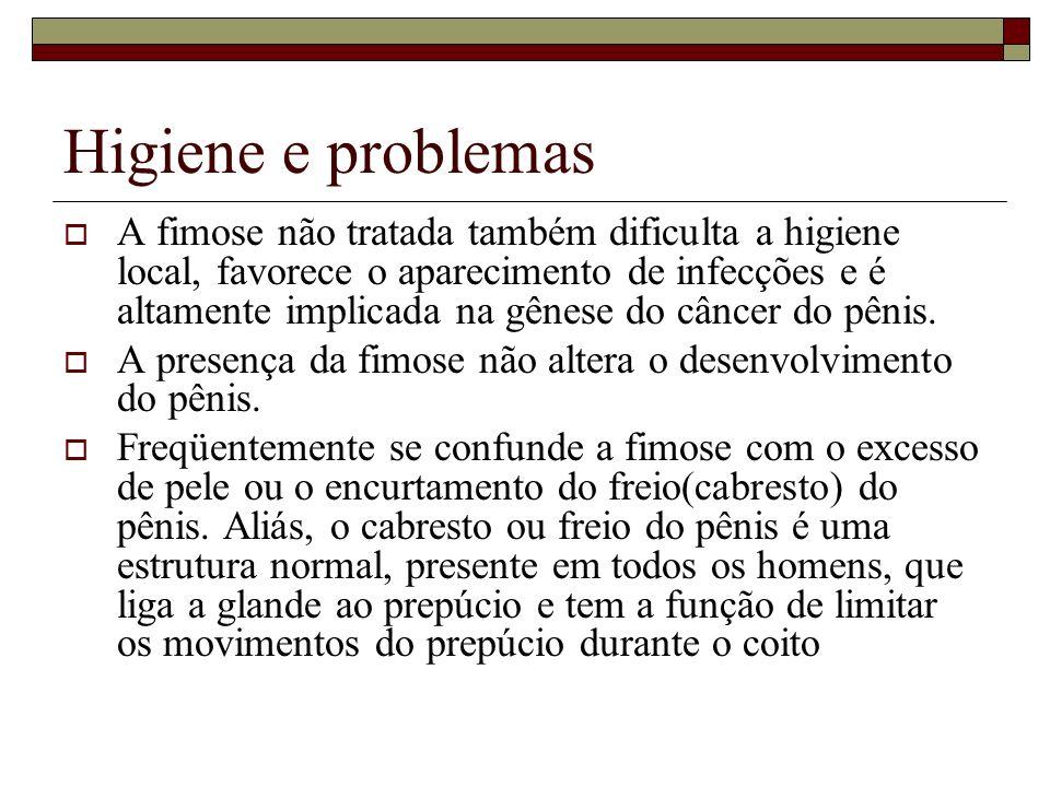 Higiene e problemas A fimose não tratada também dificulta a higiene local, favorece o aparecimento de infecções e é altamente implicada na gênese do c