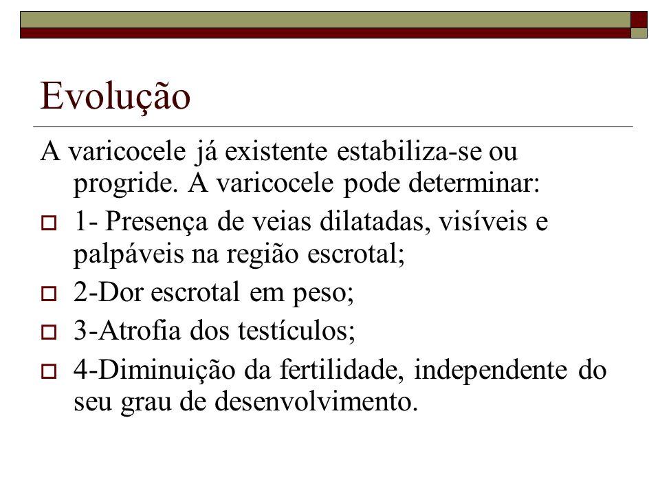 Evolução A varicocele já existente estabiliza-se ou progride. A varicocele pode determinar: 1- Presença de veias dilatadas, visíveis e palpáveis na re