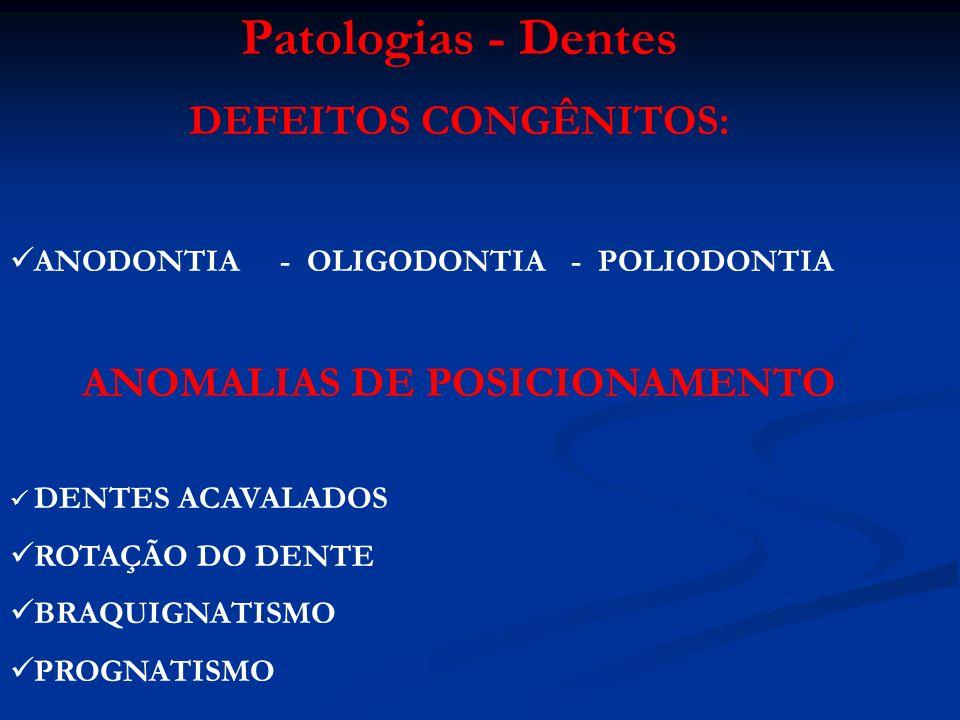 ANOMALIAS DO DESENVOLVIMENTO DENTAL HIPOPLASIA SEGMENTAR DO ESMALTE - Fluorose (Toxicose por fluoretos em bovinos) - Cinomose - Diarréia Viral Bovina (D.B.V.) COLORAÇÃO ANORMAL DOS DENTES - Fluorose - Tetraciclinas - Porfiria congênita