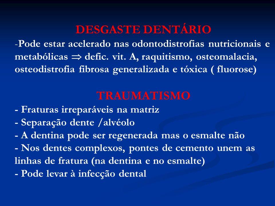 CÁRIE -É uma desmineralização destrutiva dos tecidos duros do dente, acompanhada de degradação enzimática da matriz orgânica Placa dentária = é uma massa formada pela aderência de bactérias à superfície do dente, resistente à remoção pelo fluxo salivar - A placa produz ácido láctico pH ácido desmineralização - Enzimas da placa levam à lise da matriz orgânica Tártaro = é a placa dentária que sofreu mineralização (Ca salivar)