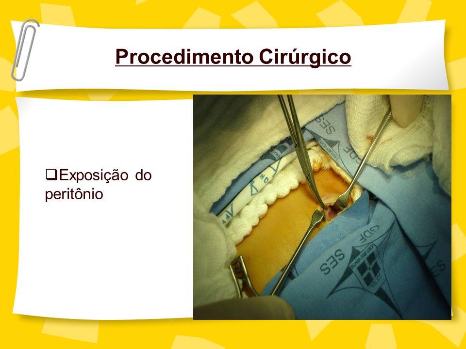 Procedimento Cirúrgico Exposição do peritônio