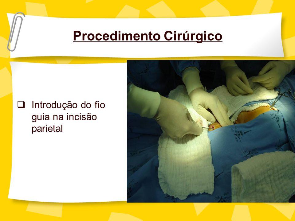 Procedimento Cirúrgico Introdução do fio guia na incisão parietal