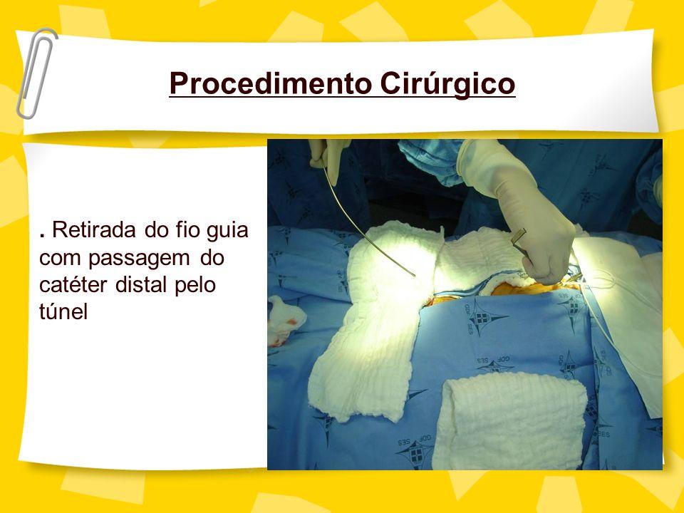 Procedimento Cirúrgico. Retirada do fio guia com passagem do catéter distal pelo túnel