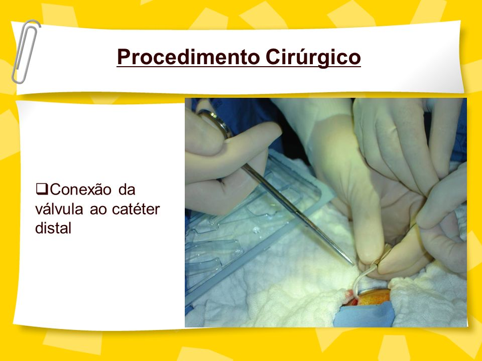 Procedimento Cirúrgico Conexão da válvula ao catéter distal