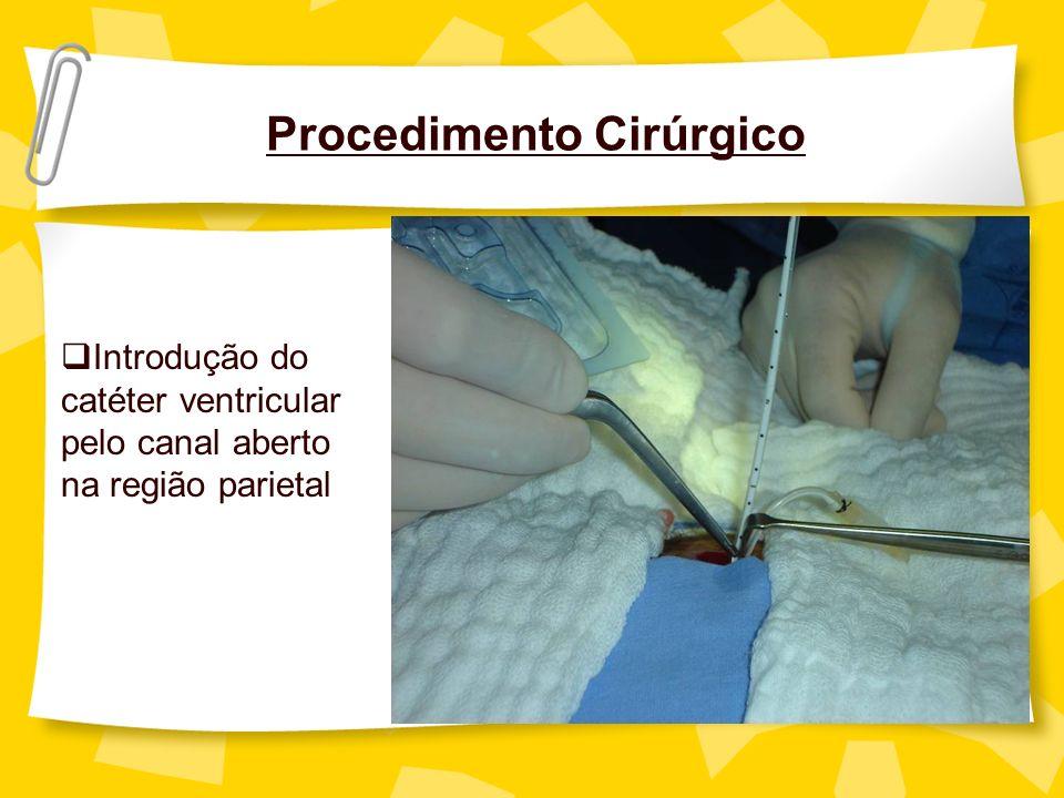 Procedimento Cirúrgico Introdução do catéter ventricular pelo canal aberto na região parietal