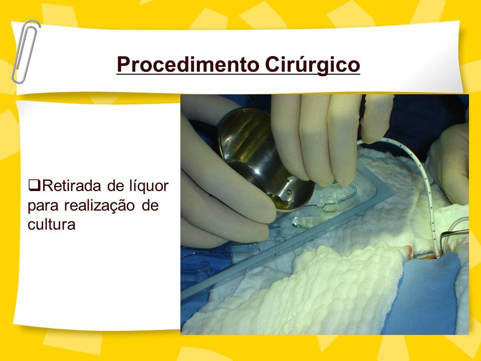 Procedimento Cirúrgico Retirada de líquor para realização de cultura