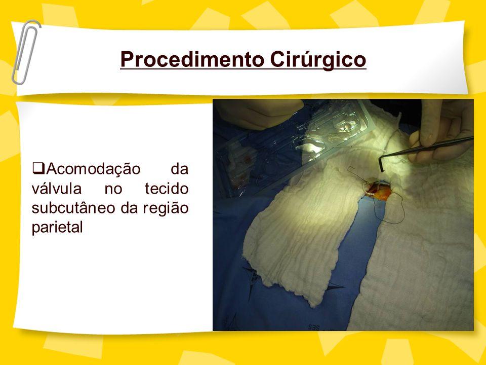 Procedimento Cirúrgico Acomodação da válvula no tecido subcutâneo da região parietal