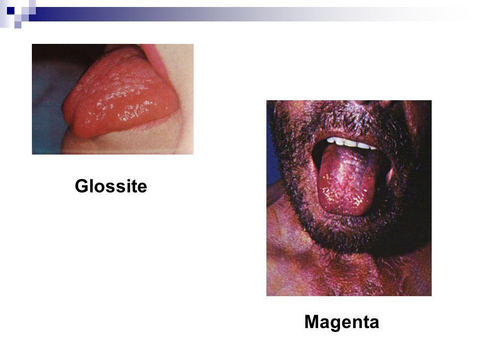 Glossite Magenta