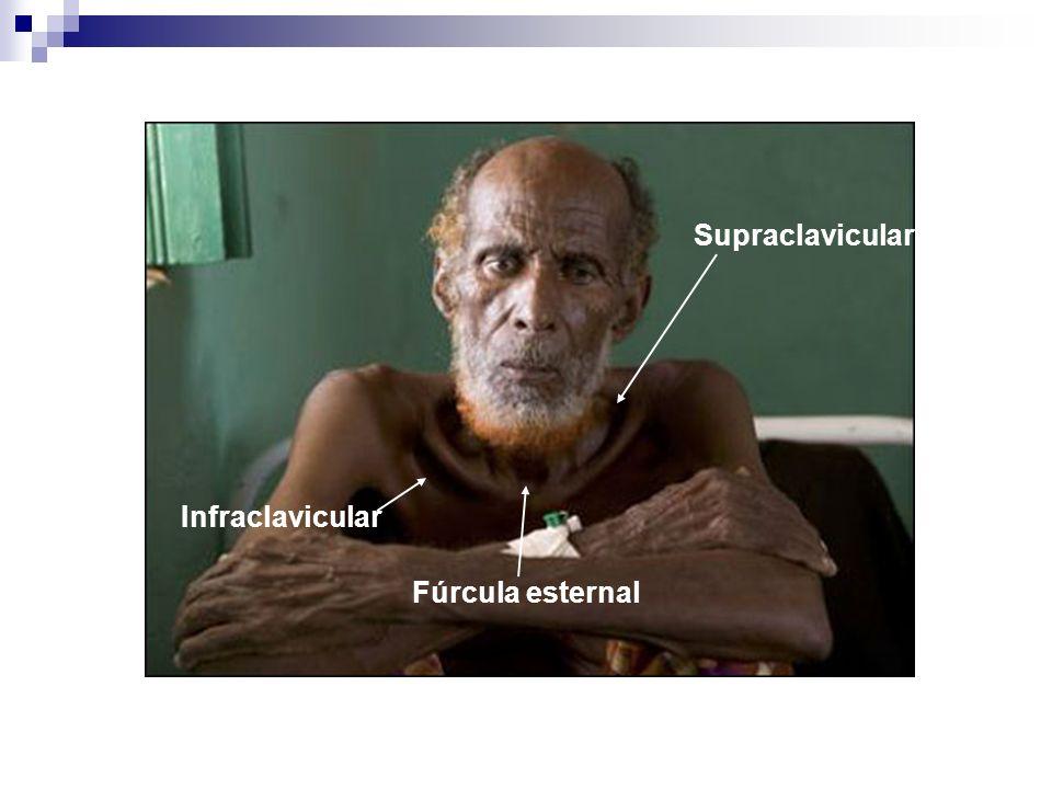 Supraclavicular Infraclavicular Fúrcula esternal