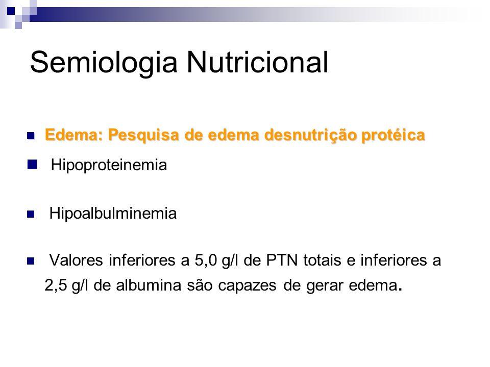 Semiologia Nutricional Edema: Pesquisa de edema desnutrição protéica Edema: Pesquisa de edema desnutrição protéica Hipoproteinemia Hipoalbulminemia Va