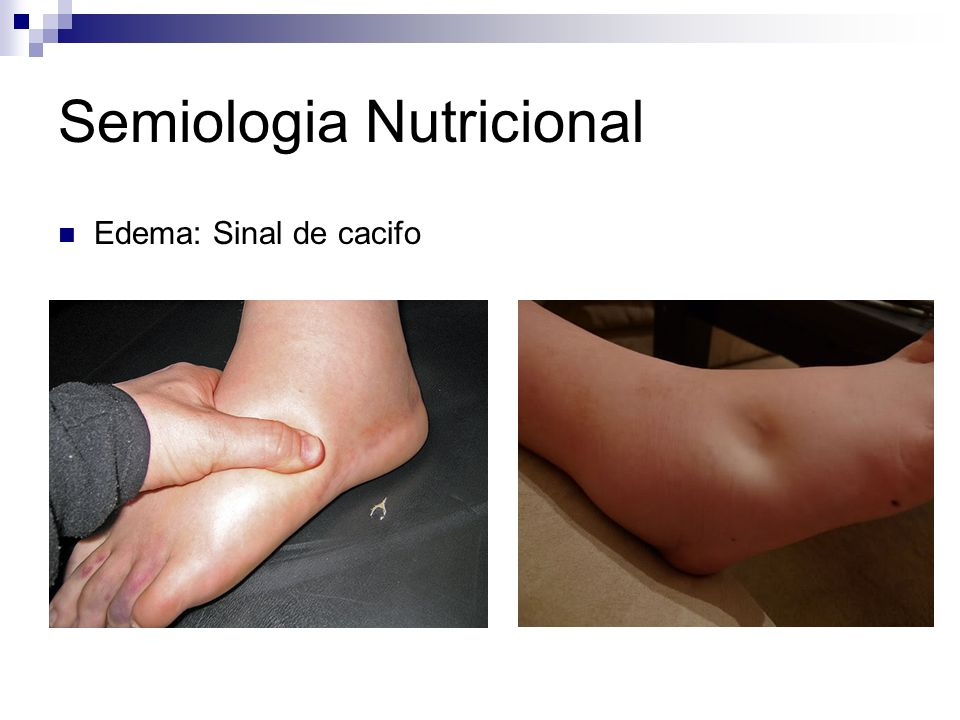 Semiologia Nutricional Edema: Sinal de cacifo