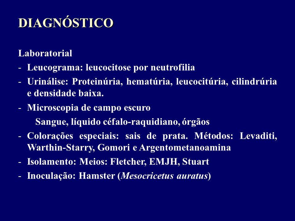 DIAGNÓSTICO Laboratorial -Leucograma: leucocitose por neutrofilia -Urinálise: Proteinúria, hematúria, leucocitúria, cilindrúria e densidade baixa. -Mi