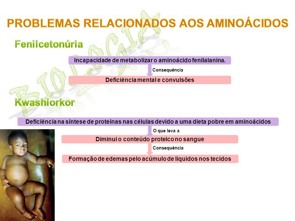 Incapacidade de metabolizar o aminoácido fenilalanina. Deficiência mental e convulsões Consequência Deficiência na síntese de proteínas nas células de