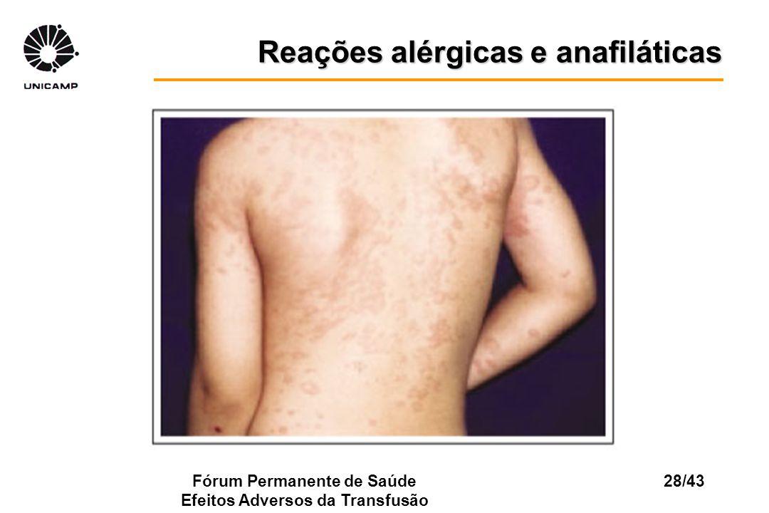 Fórum Permanente de Saúde Efeitos Adversos da Transfusão 28/43 Reações alérgicas e anafiláticas