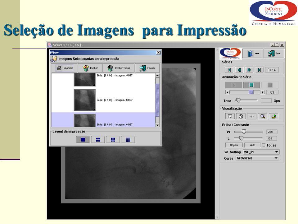 Seleção de Imagens para Impressão