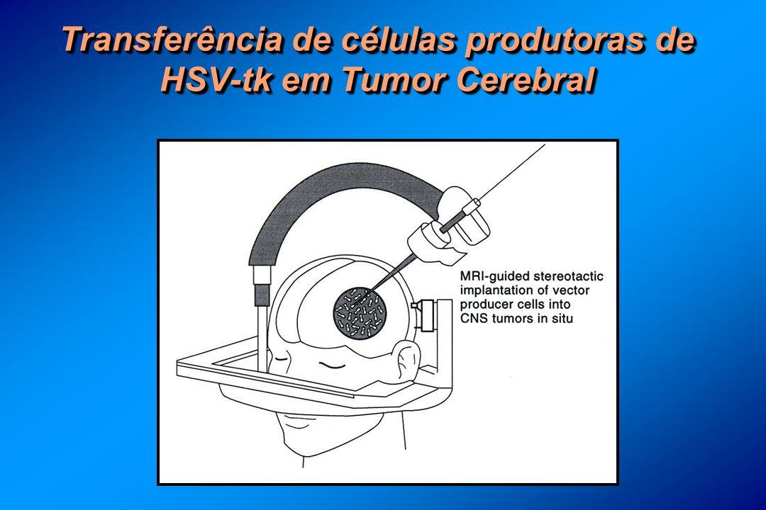 Transferência de células produtoras de HSV-tk em Tumor Cerebral