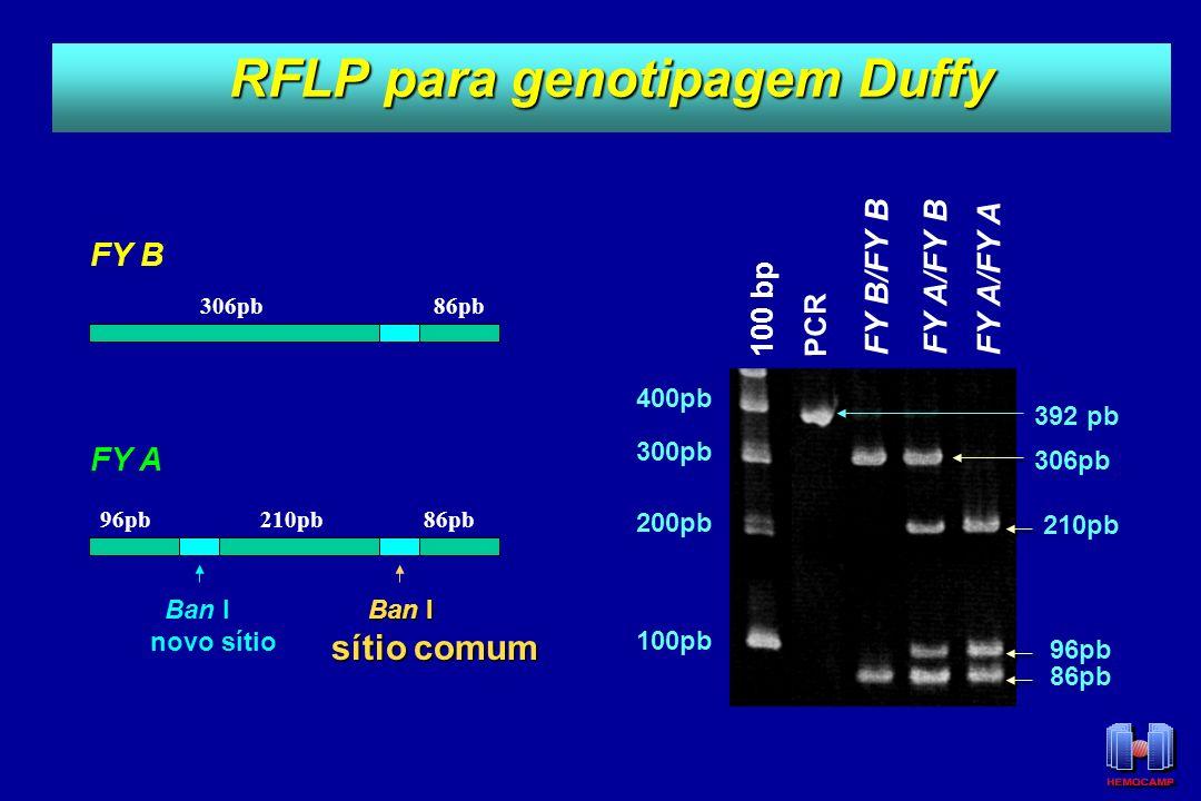 RFLP para genotipagem Duffy 306pb 210pb86pb 96pb Ban I novo sítio Ban I Ban I sítio comum FY B FY A PCR FY B/FY B FY A/FY B FY A/FY A 306pb 210pb 86pb