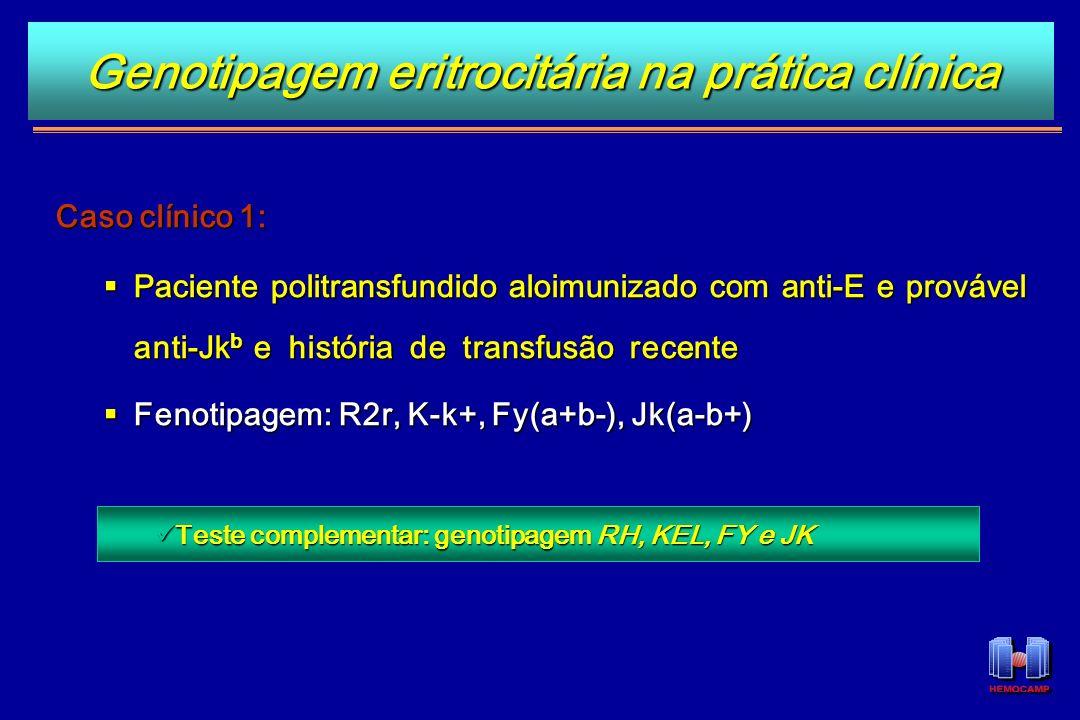 Genotipagem eritrocitária na prática clínica Caso clínico 1: Paciente politransfundido aloimunizado com anti-E e provável anti-Jk b e história de tran