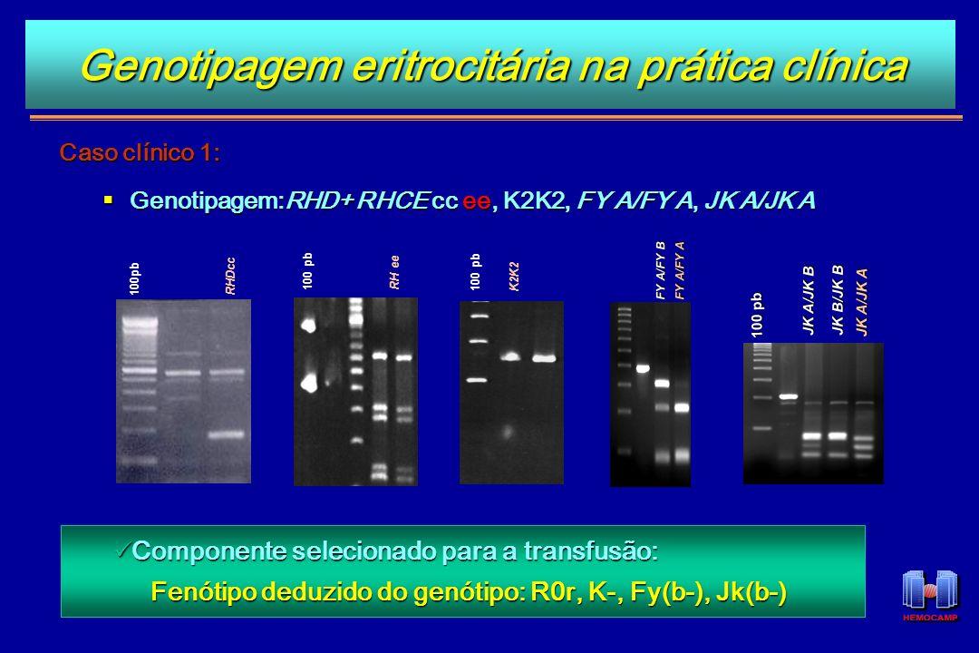 Caso clínico 1: Genotipagem:RHD+ RHCE cc ee, K2K2, FY A/FY A, JK A/JK A Genotipagem:RHD+ RHCE cc ee, K2K2, FY A/FY A, JK A/JK A Componente selecionado
