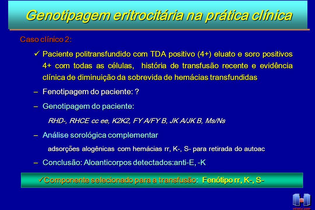 Caso clínico 2: Paciente politransfundido com TDA positivo (4+) eluato e soro positivos 4+ com todas as células, história de transfusão recente e evid