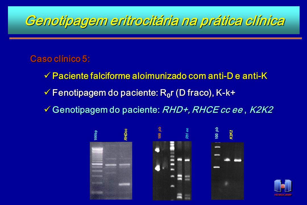 Caso clínico 5: Paciente falciforme aloimunizado com anti-D e anti-K Paciente falciforme aloimunizado com anti-D e anti-K Fenotipagem do paciente: R 0